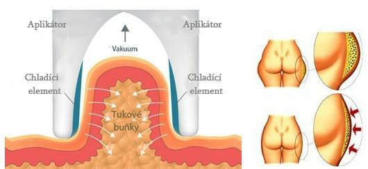 Kryolipolýza (liposukce zmražením)